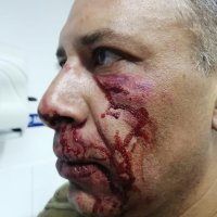 Carabinero es agredido tras notificar infracción de tránsito en Alto Hospicio.